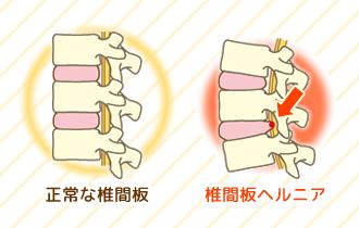 正常な状態と椎間板ヘルニアの状態